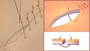sutura discontinua 2