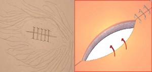 sutura grapas