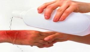 tratamiento-quemaduras-quimicas